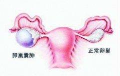 预防女性卵巢囊肿都有哪些办法?