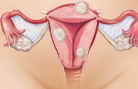 为什么女性会长子宫肌瘤?