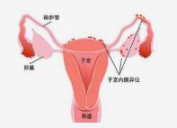女性宫颈炎的自我检查都有哪些方法?